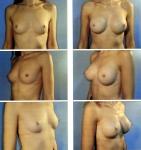 Asimetría mamaria_6
