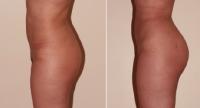 Aumento de gluteos por protesis_3