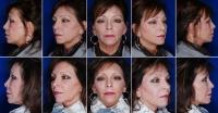 Relleno facial con grasa